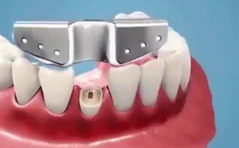 دستگاه کشیدن دندان شکسته